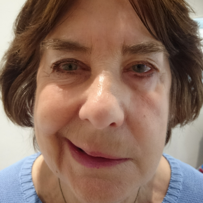 A patient with Bell's palsy, before treatment