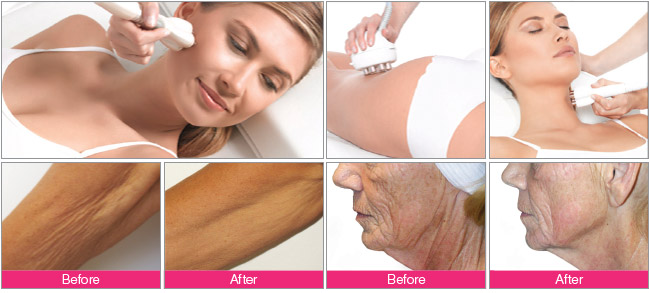 Before and after Venus Freeze