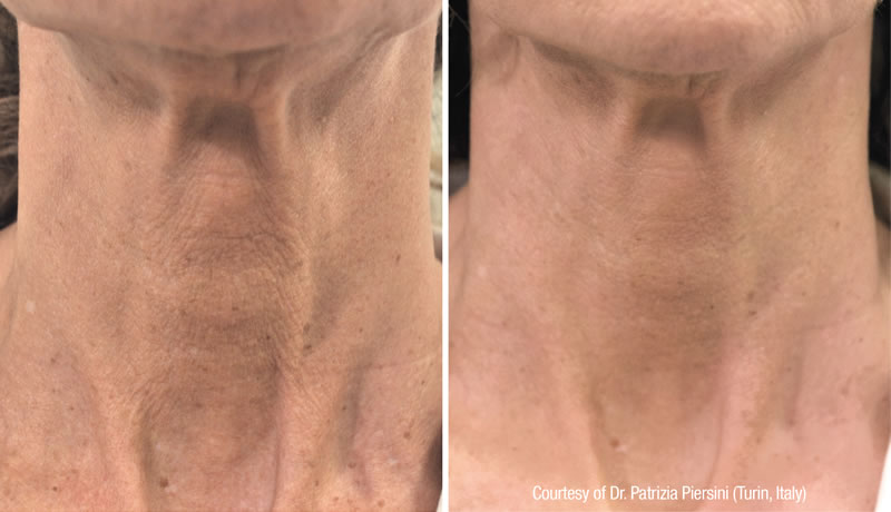 Before and after Profilho treatment – neck