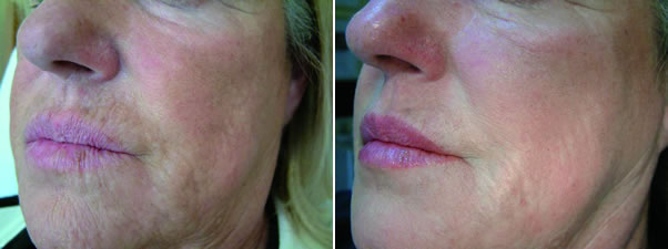 Before and after Profilho treatment – mouth