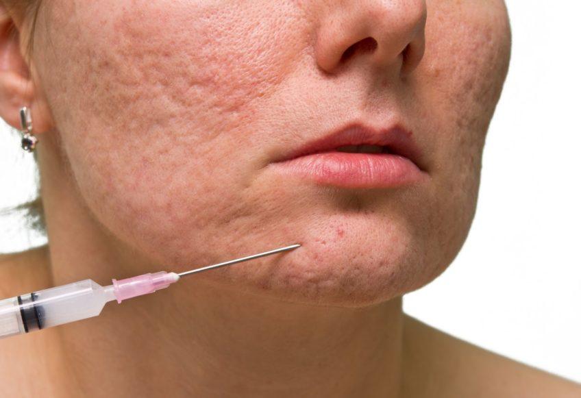 Dermal Fillers For Scars Melior Clinics